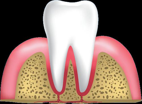 gum disease stage 1