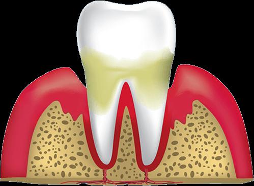 gum disease stage 3