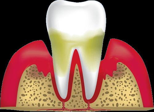 gum disease stage 4