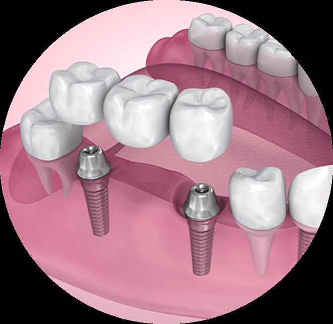 Implant supported bridge model