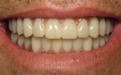 dental implant patient after treatment