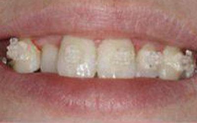 crooked teeth before treatment