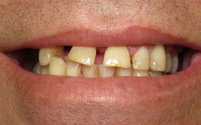 dental implant patient before treatment