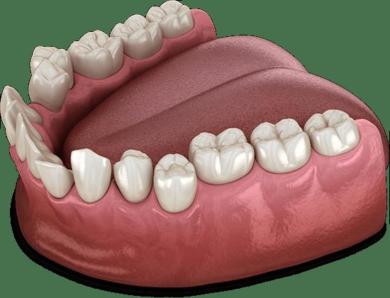 crooked teeth model