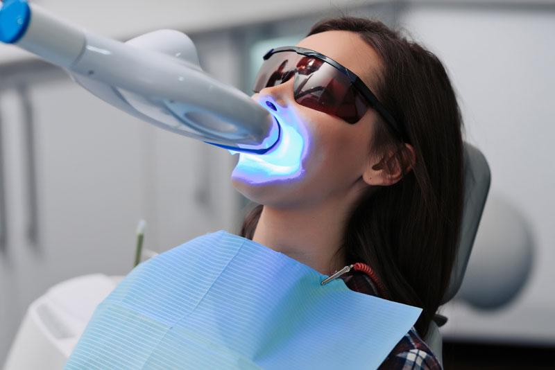 dental patient undergoing teeth whitening procedure 1