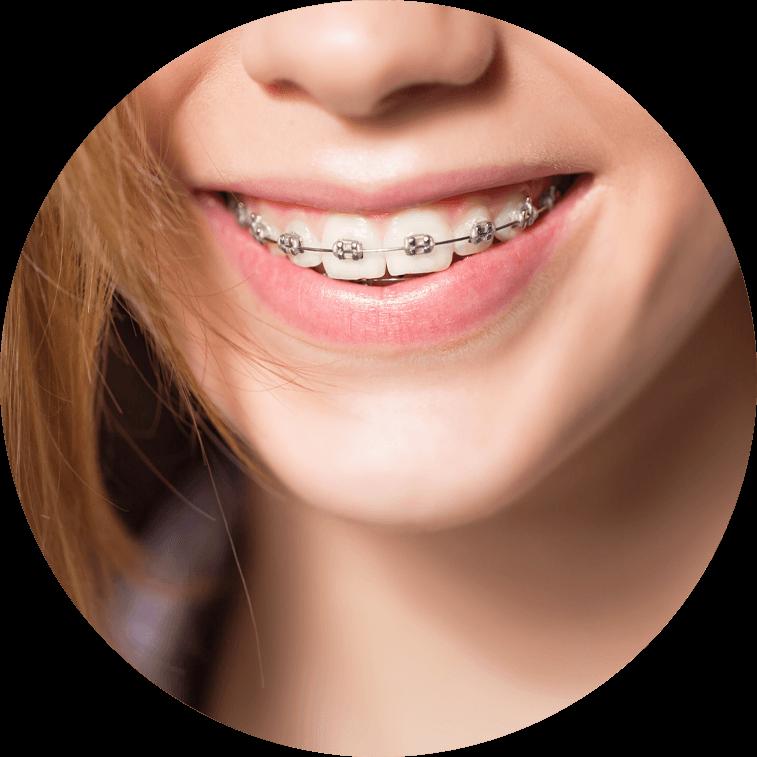 braces model